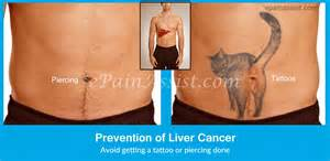 signs of liver cancer picture 17