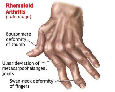 arthritis & joint tightness picture 3