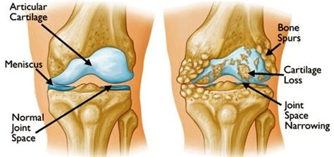 medial knee pain + joint space picture 4