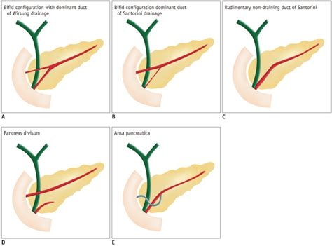 what are the symptoms of a gall bladder picture 12