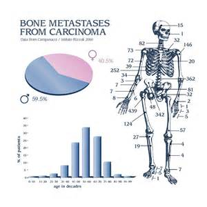 Advanced prostate cancer with bone metastasis life expectancy picture 7