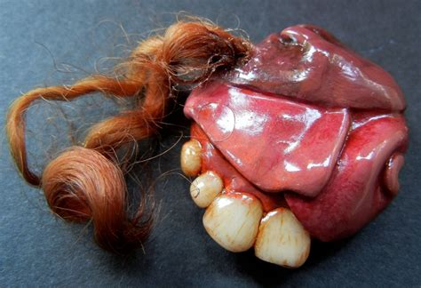 tumor with teeth and hair picture 3