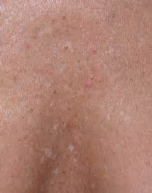 one inch white spots on skin picture 11