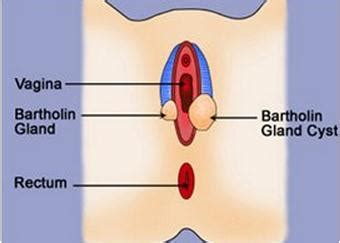 tea s and bartholin cyst picture 10