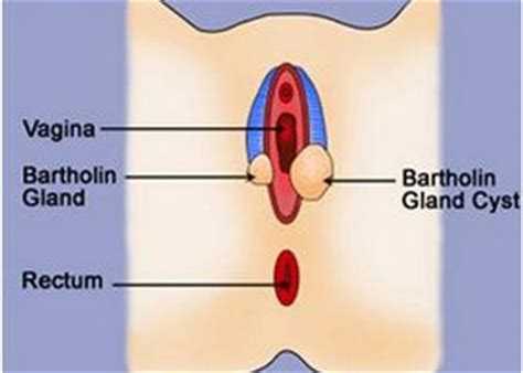 bartholin gland cyst with yeast infection picture 5