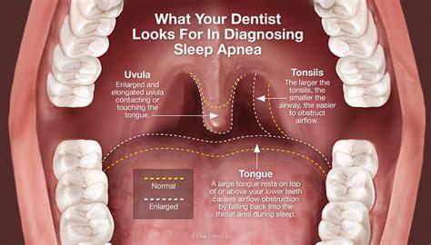 symptoms of sleep apnea picture 10