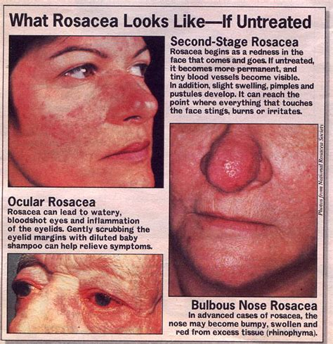 rosacea on nose picture 9
