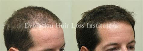 fenugreek and hair growth before and after picture 4