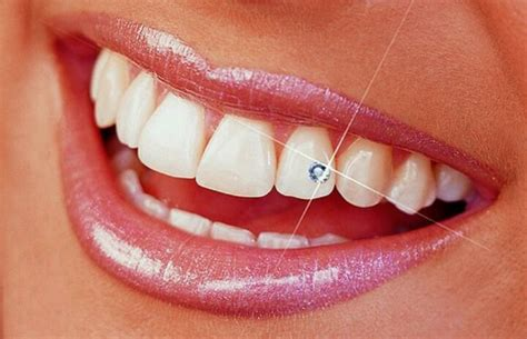 diamond teeth picture 6