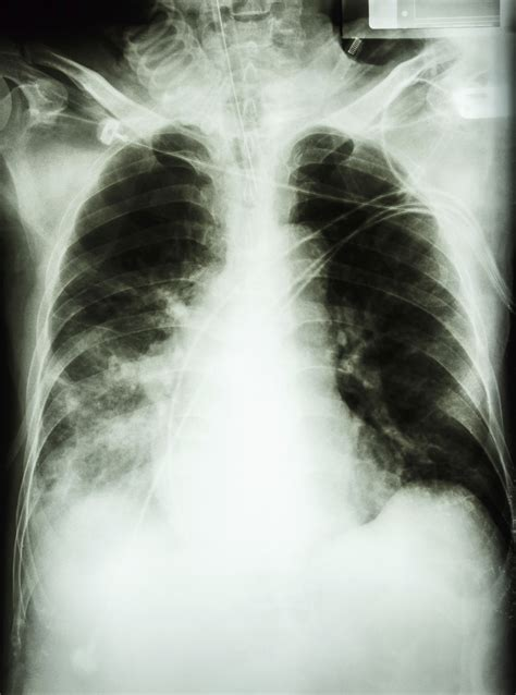 sensitivity and specificity of chest xray in diagnosing bacterial pneumonia picture 17