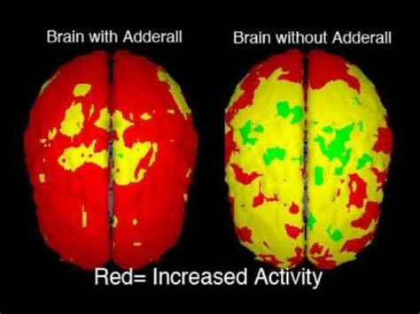 adderall problems picture 2