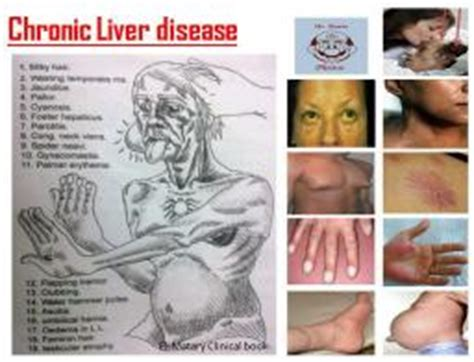 sign of liver problems picture 5