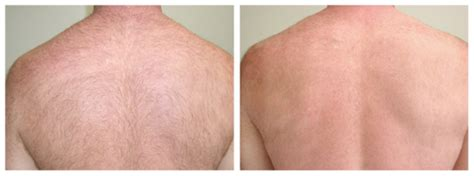 laser hair removal washington dc picture 9