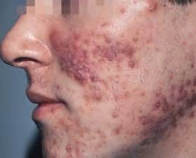 face herpes pictures picture 6