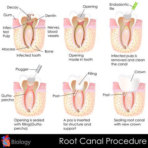 skin boils treatment picture 11