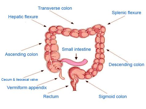 syptoms of colon cancer picture 7