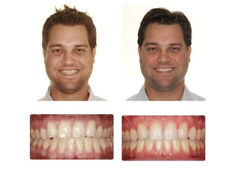 austin teeth whitening picture 14