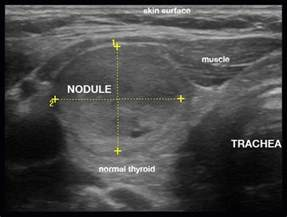 5cm x 8cm thyroid nodule picture 6