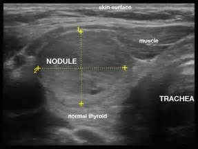 enlarge hypervascular thyroid gland with nodules as described picture 1