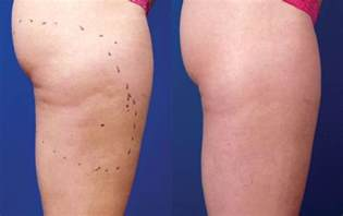 cellulite before picture 1