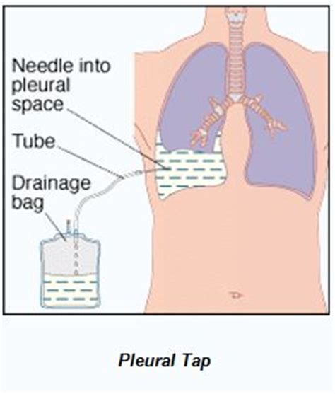 herbal treatment of pleural effusion picture 2