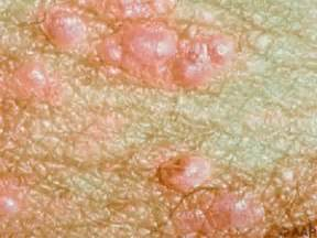 sexually transmitted disease genital warts picture 14