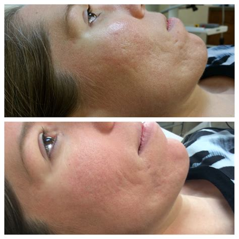 laser stretch mark removal dermatology picture 2