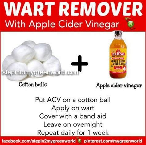 wart natural removal picture 13