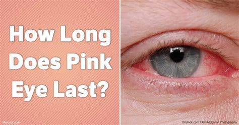 will bacterial pink eye reside picture 11