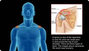 ac joint arthritis picture 3