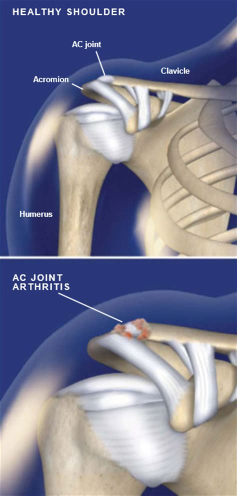 arthritis of the ac joint of the shoulder picture 5
