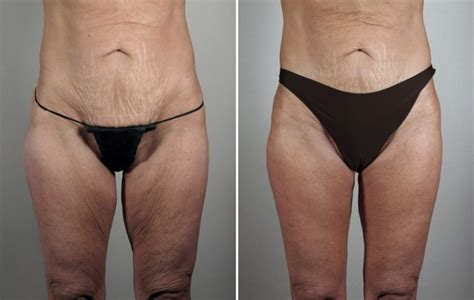loose skin after weight loss picture 3
