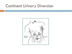 continent urinary diversions urine bladder picture 1