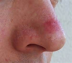 hot compress for cystic acne picture 6