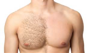 breasts and genital hair removal picture 1