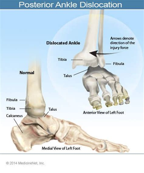 ankle joint recurrent subluxation dislocation picture 2
