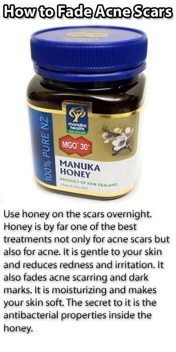 acne scar treatment in mercury drug store picture 11