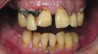 drugs affect on teeth and gums picture 15