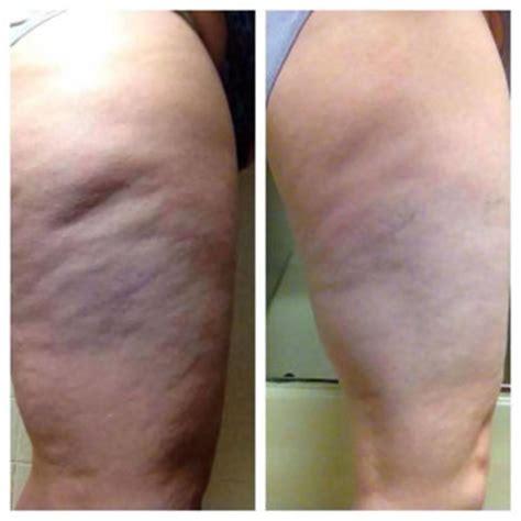 cellulite picture picture 11