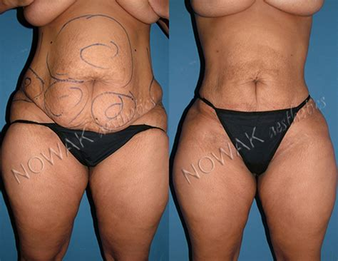 after lipo 6 black her picture 2