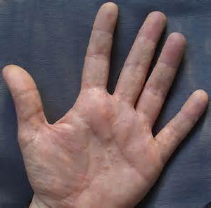 bacterial infection on palm of hand picture 6