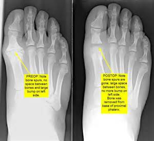 virginia bunions and great toe arthritis/hallux limitus joint picture 1