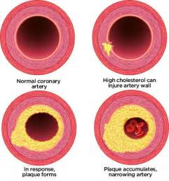 Tip to lower cholesterol picture 10