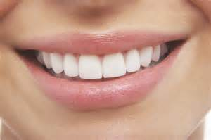 st petersburg teeth whitening picture 3