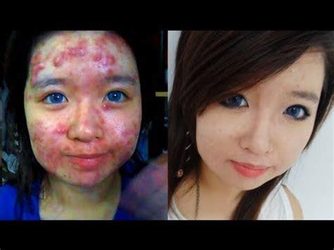 acne and vinegar picture 7
