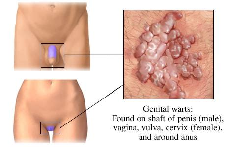 does vaginal wart cause discharge picture 9