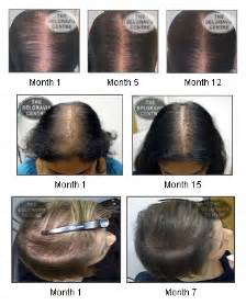 xl hair growth serum picture 3