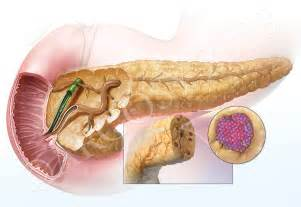 pancreatic divisum low fat diet picture 11