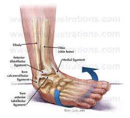 ankle sprain joint capsule damage picture 2