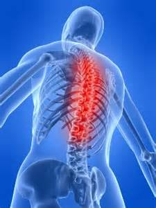 herbal supplements for sacroiliac joint pain picture 13